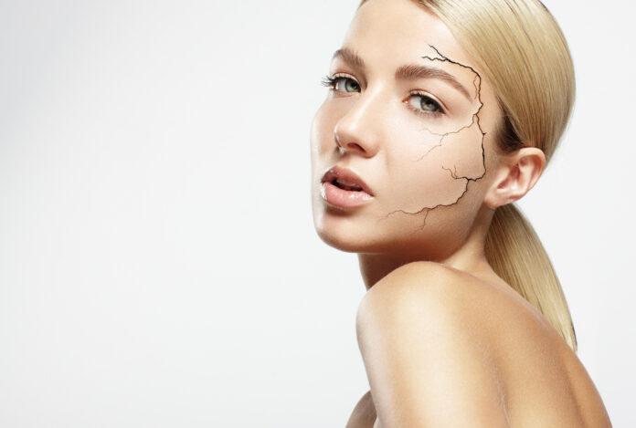 skóra sucha - jak o nią dbać?